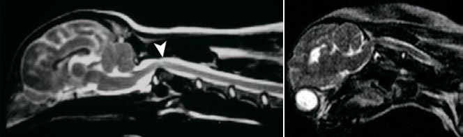 МРТ-сканирование. Явно выраженная компрессия спинного мозгав области С1–С2