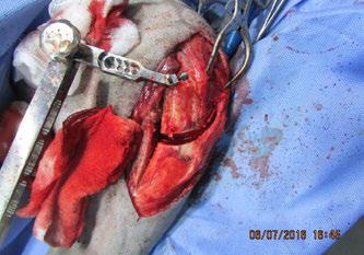 С-образный костный клин выпилени удален. Фрагмент операции.